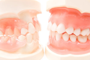 前から4、5番目の歯を保険で白い歯に